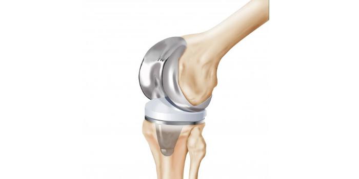 Nuevas estrategias para el mecanizado de piezas ortopédicas
